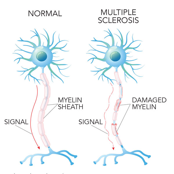 Image result for multiple sclerosis images