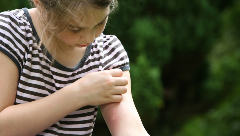 Normal vs. Allergic Reactions to Bug Bites and Stings | Beaumont Health
