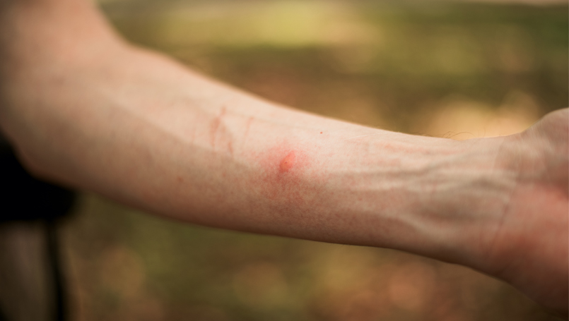 Common Bug Bites and When to See a Doctor | Beaumont Health