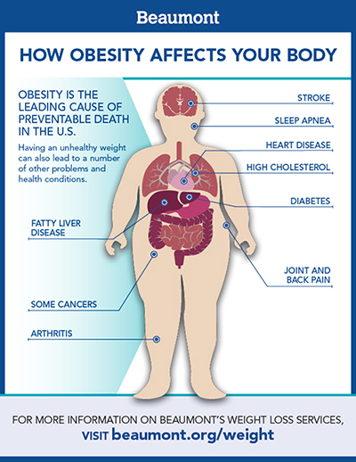 Weight Loss Services Obesity Causes And Treatment Beaumont Health